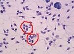 Агглютинация в спермограмме: что это?