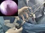 Гистероскопия – метод диагностики и лечения аденомиоза