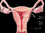 Лечение и диагностика полипа матки